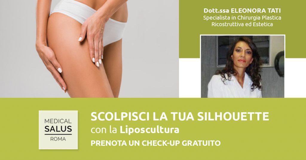 Liposcultura - Dott.ssa Tati